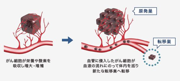 がん細胞 転移のイメージ